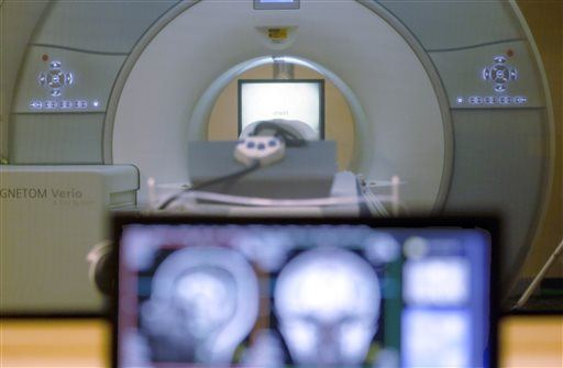Think You Can Live Without a Brain? This Man Pretty Much Did (and He Didn't Even Notice)