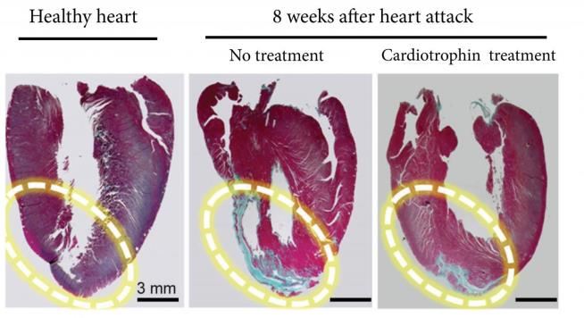 Exercising proteins may lead to heart problems