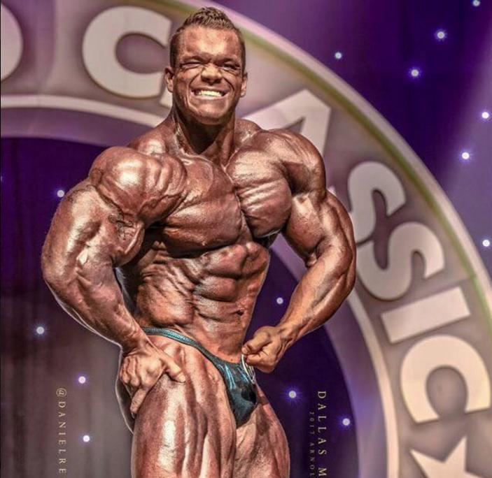 Bodybuilder Dallas McCarver Dead From Choking: Report