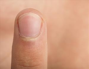 A finger. You can give the cops one of these and maybe land yourself about four grand.