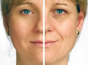 Cosmetic surgery shaves an average of 7.2 years off your face.
