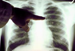 Desperate Europeans are willing to part with their lungs.