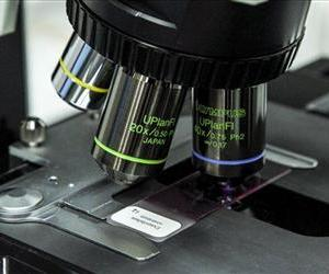This Oct. 12 file photo shows a microscope slide at the Centers for Disease Control in Atlanta.