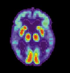 Brain scans spotted telltale signs of the disease.