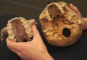 This undated handout photo shows the casts of two palates demonstrates the large size of the teeth of Paranthropus boisei (left), an early human relative that lived in East Africa.