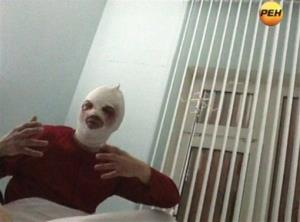 Bolshoi ballet director Sergei Filin gestures in a hospital in Moscow where he is being treated.