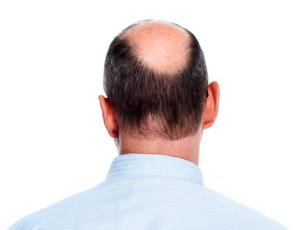 The study found an increased risk for men who were bald at the crown of their head.