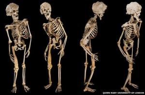 Skeleton images of the Elephant Man.