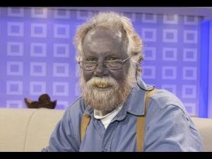 A man who turned permanently blue after self-medicating for a skin condition has died.
