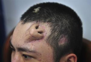 The 22-year-old patient has an extra nose made out of his rib cartilage and implanted under the skin of his forehead.
