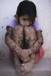 Aixa Cano, 5, who has hairy moles all over her body that doctors can't explain.
