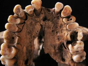 Upper teeth from between 14,000 and 15,000 years old, recovered in Morocco, show multiple cavities and other oral disease.