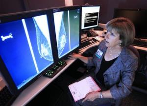 Dr. Karen Lindsfor, a professor of radiology and chief of breast imaging at the University of California, Davis Medical Center, examines the mammogram of a patient.
