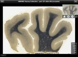 Digitized image of brain tissue from renowned theoretical physicist Albert Einstein.