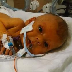 Little Sophia Steffel, in a hospital photo posted by her dad, Nathen.