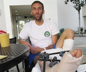 Gregg Hein, who broke his leg on a solo hike in the Sierra Nevada mountains, recovers at the Community Regional Medical Center in Fresno, Calif. on Wednesday, July 16, 2014.
