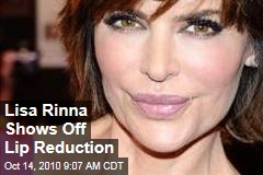 Lisa Rinna Lip Reduction Photos: She Shows Off Surgery Results