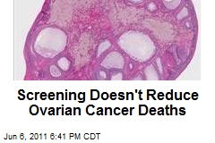 Screening Doesn't Reduce Ovarian Cancer Deaths