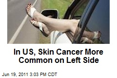 In US, Skin Cancer More Common on Left Side