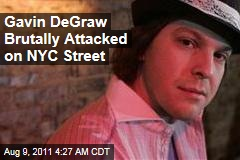Gavin DeGraw Hospitalized After New York City Attack