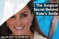 French Dentist Surgically Enhanced Kate Middleton's Smile