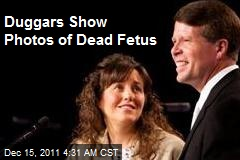 Duggars Show Photos of Dead Fetus
