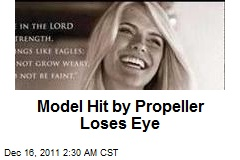 Model Hit by Propeller Loses Eye