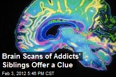 Brain Scans of Addicts' Siblings Offer a Clue