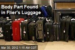 Body Part Found in Flier's Luggage