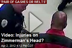 Video: Injuries on Zimmerman's Head?