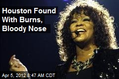 Houston Found With Burns, Bloody Nose