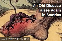 An Old Disease Rises Again in America