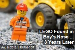LEGO Found in Boy's Nose ... 3 Years Later