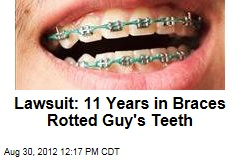 Lawsuit: 11 Years in Braces Rotted Guy's Teeth