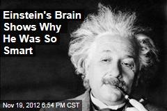 Einstein's Brain Shows Why He Was So Smart