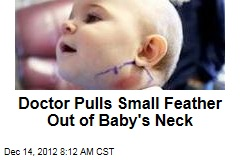 Doctor Pulls Small Feather Out of Baby's Neck