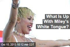 What Is Up With Miley's White Tongue?