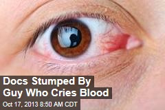 Docs Stumped By Guy Who Cries Blood