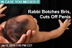 Rabbi Botches Bris, Cuts Off Penis