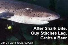 Bit by Shark, Guy Stitches Leg, Grabs a Beer
