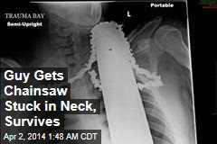 Guy Gets Chainsaw Stuck in Neck, Survives