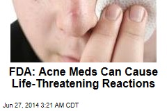 FDA Warns of Severe Acne Product Reactions