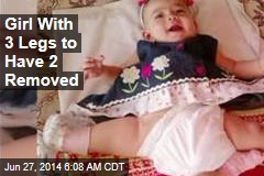 Girl With 3 Legs to Have 2 Removed