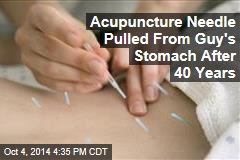 Acupuncture Needle Pulled from Guy's Stomach After 40 Years