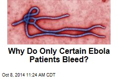 Why Do Only Certain Ebola Patients Bleed?