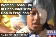 Woman Loses Eye in Encounter With Cop in Ferguson
