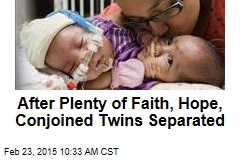 After Plenty of Faith, Hope, Conjoined Twins Separated