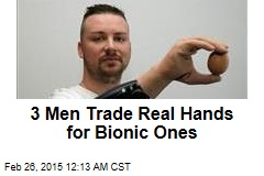 3 Men Trade Real Hands for Bionic Ones