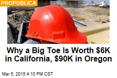 Why a Big Toe Is Worth $6K in California, $90K in Oregon