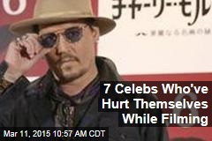 7 Celebs Who've Hurt Themselves While Filming